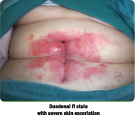 Duodenal fi stula with severe skin excoriation